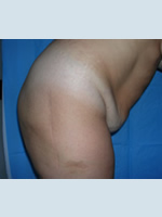 Abdominoplasty and abdominal Dialing before
